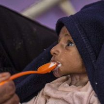 Children Die from Hunger in Yemen